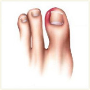 ingroeiende-nagel-186x186