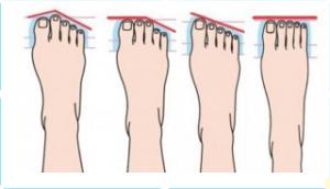vorm van voeten